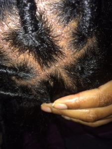 Photo of my horrendous scalp :(
